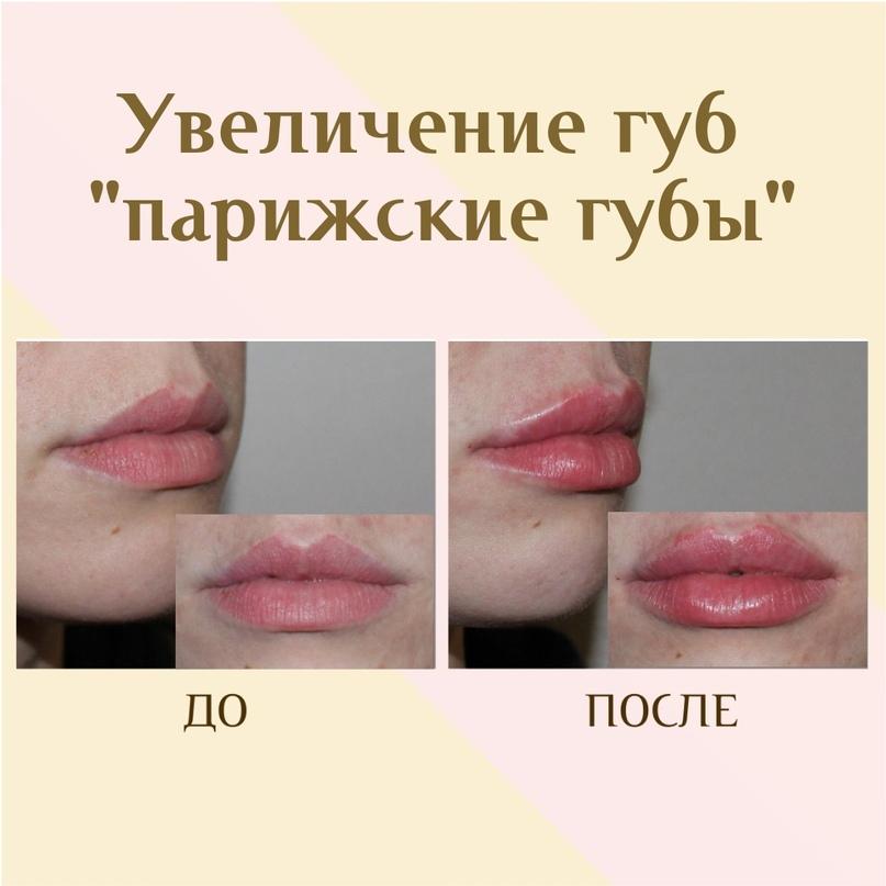 Губы и область вокруг рта., изображение №27
