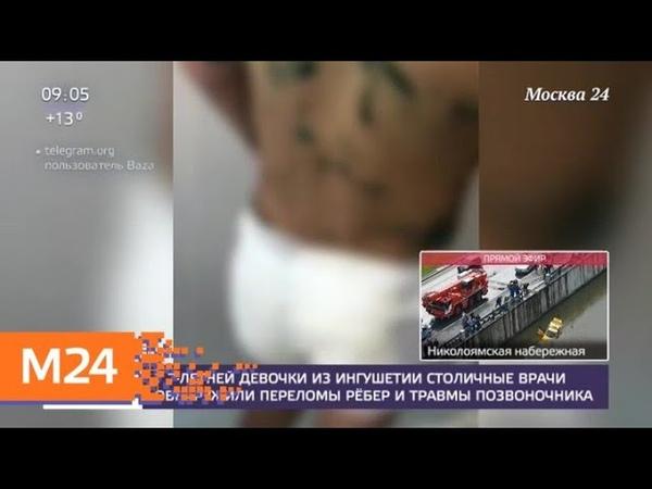 У семилетней девочки из Ингушетии врачи обнаружили переломы ребер Москва 24