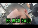 How to fix balding hair! cover up bald spots, receding hairlines, and thinning hair!