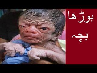 Shocking face of NewBorn Baby who looks 80 year old,in urdu,urdu tv hub