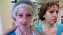 69 ЖЕЛТЫЙ ПИЛИНГ процедура и шелушение день за днем Golden Yellow Peel Dermatime