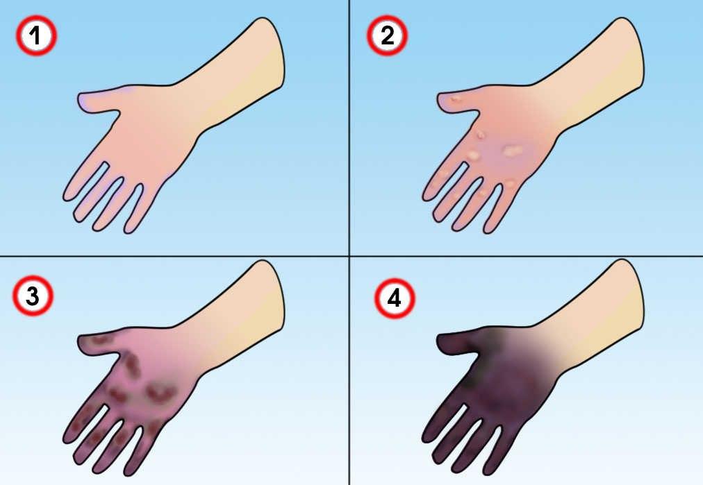 Поражения холодом: Медицинская помощь на догоспитальном этапе, изображение №1