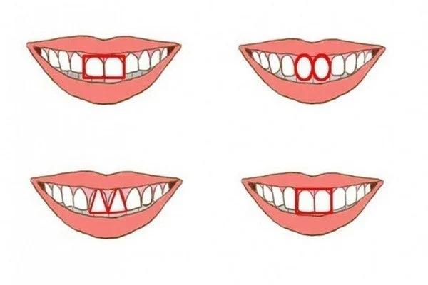Что форма передних зубов может рассказать о вашей личности