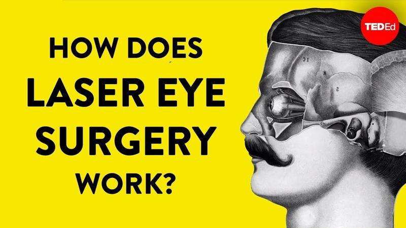 How does laser eye surgery work Dan Reinstein