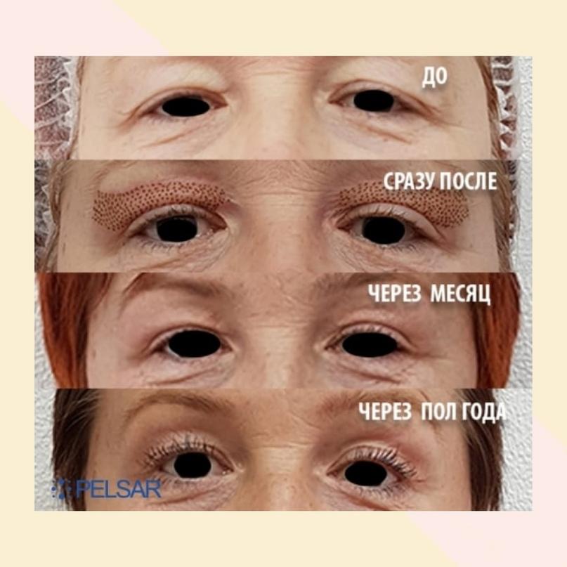 Область глаз. Старение и лечение., изображение №4