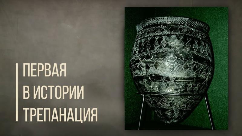 Первая в истории трепанация черепа кумыс и тандыр Дорога людей