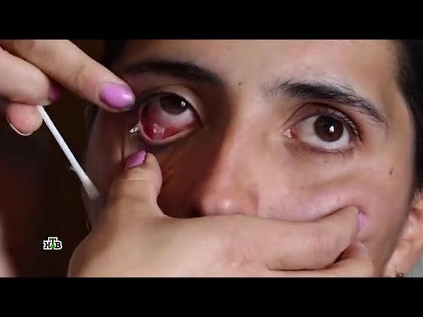 Бриллиантовые слезы: корреспондент НТВ встретился с плачущей кристаллами девушкой